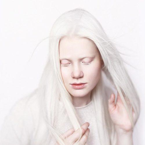 ¿Qué es el albinismo?